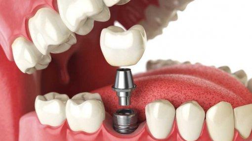 Infarmed alerta para utilização de pilares para implantes dentários