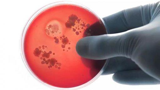 Áreas da saúde humana, animal e do ambiente juntos para combater resistência a antibióticos