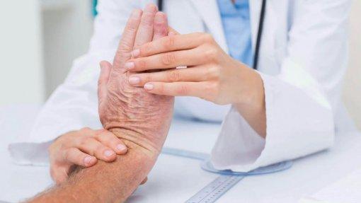 Reumatologistas acusam Governo de falta de planeamento e de não usar critérios técnicos